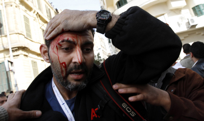 Injured Associated Press photographer Khalil Hamra